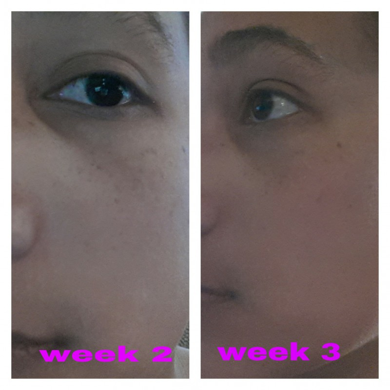 Kiehl S Kiehl S Dermatologist Solutions Clearly Corrective Dark Spot Solution Review Beauty Bulletin Eye Creams Serums