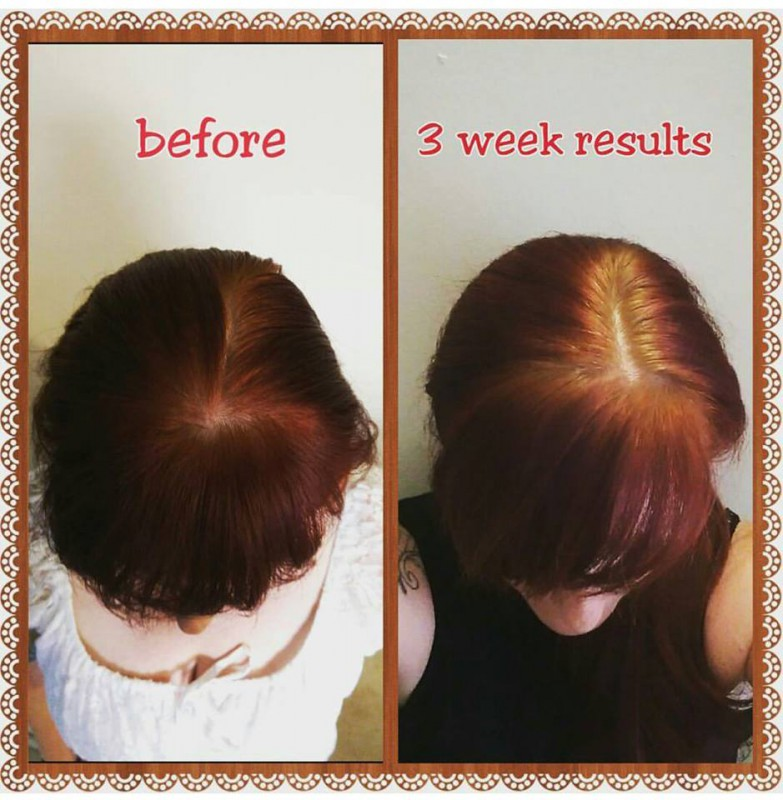 hair for sure tonic reviews