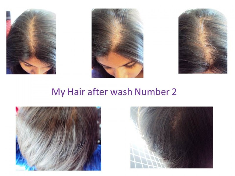 Nioxin Nioxin Hair System Kit 2 Noticeably Thinning