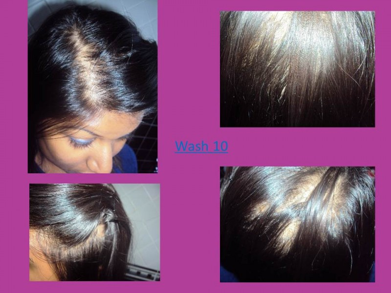 Noticeably Thinning Hair Noticeably Thinning Hair