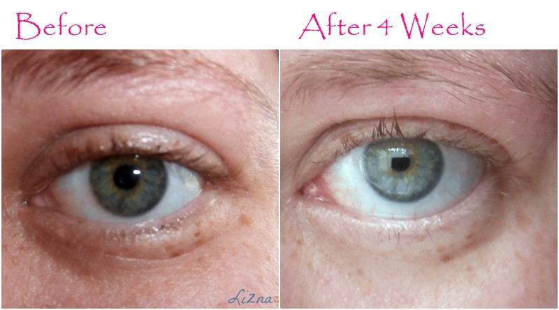 User Reviews Kiehl S Super Multi Corrective Eye Opening Serum