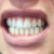 Before Using Listerine Advanced White Mouthwash