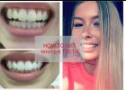 GET WHITER TEETH | Listerine Advanced White